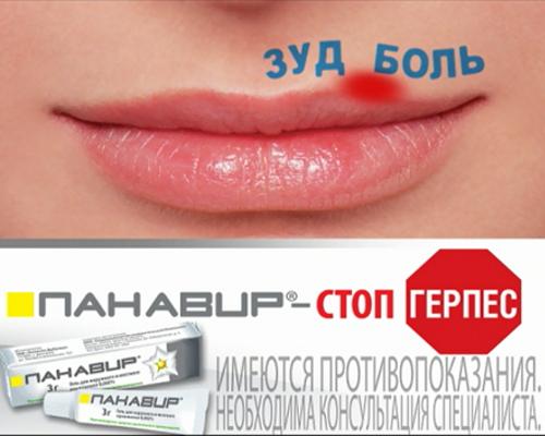 герпес на губах фото лечение народными