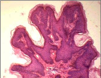 Анализ на вирус папилломы человека красноярск фото